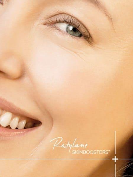 Restylane-Skinboosters_2b